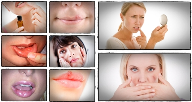 herpes-treatment