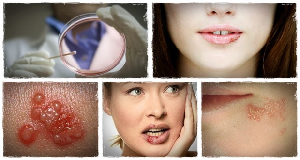 how-to-stop-herpes-with-get-rid-of-herpes-review